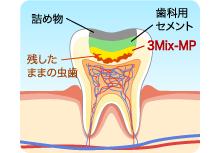 3Mix-MP法 | おおつか歯科クリニ...